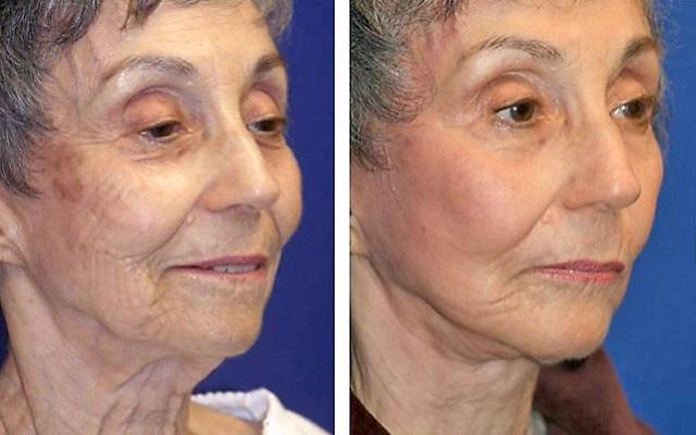 Эффект от хирургической подтяжки лица и шеи