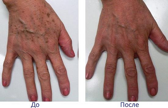 IPL терапия возрастных пятен на руках до и после