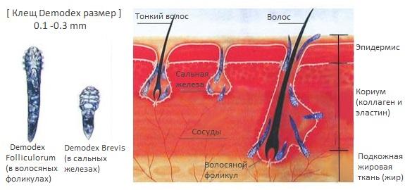 Сравнение клеща Demodex folliculorum и Demodex brevis