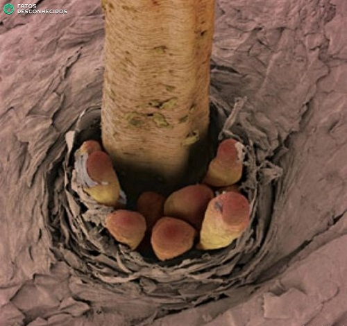Ресничные клещи в волосяном фоликуле