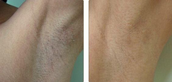 До и после лазерной эпиляции подмышек