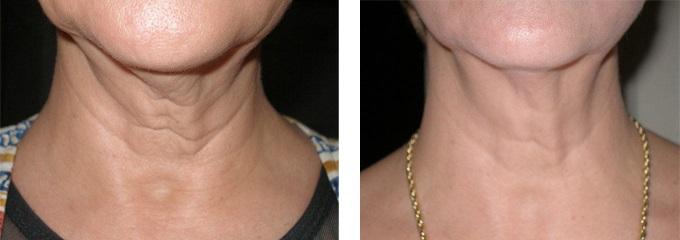 Эффект от лазерной подтяжки кожи на шее