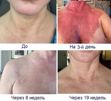 Эффект от лазерной шлифовки груди