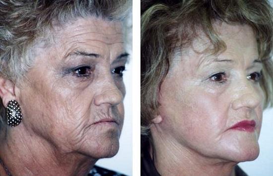 До и после лазерной терапии для лечения морщин