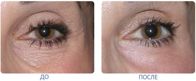 До и после применения лазера от морщин под глазами