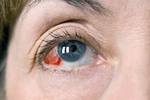 Лопнувший кровеносный сосуд в глазу