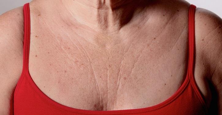 Морщины на груди у женщины