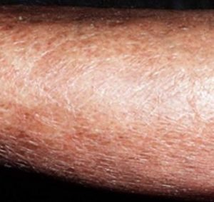 Очень сухая кожа на ноге