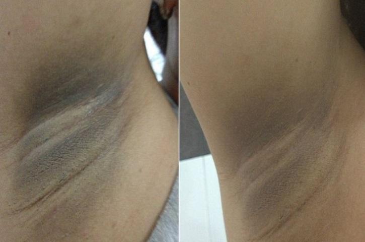 До и после отбеливания подмышек кремом