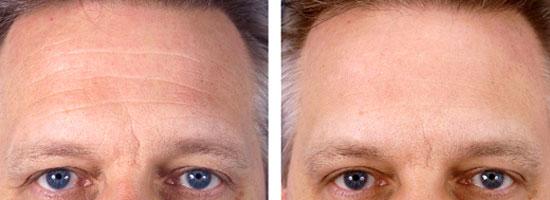 Эффект от хирургической подтяжки кожи на лбу