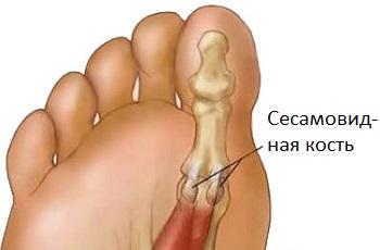 Сесамовидная кость большого пальца ноги