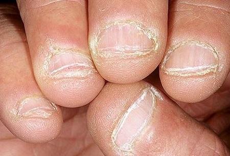 Шелушение кожи вокруг ногтей из-за сухости кожи