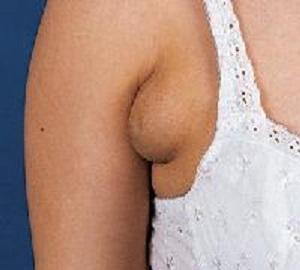 Шишка под мышкой во время беременности