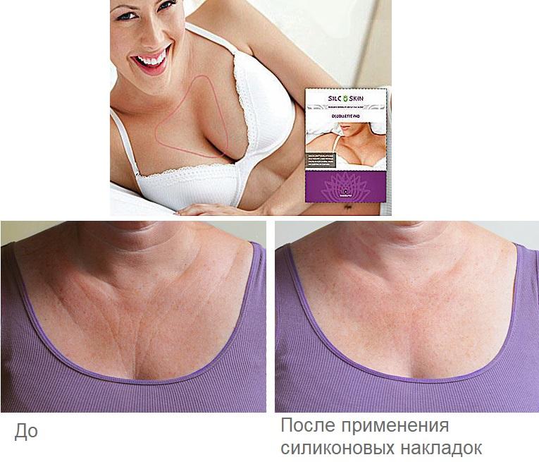 Эффект от силиконовых накладок для груди
