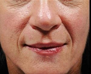 Линии вокруг рта при улыбке