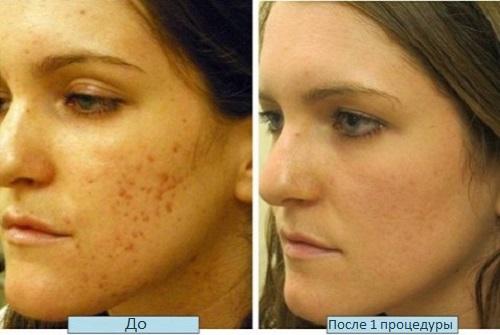Эффект от удаления пятен на коже лазером