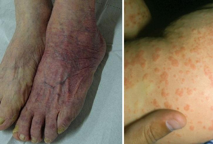 Сыпь красная на ногах не чешется