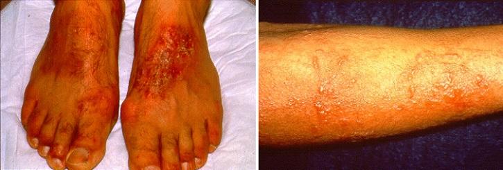Острый аллергический контактный дерматит на ногах
