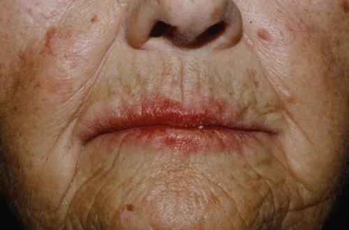 Аллергический контактный дерматит на лице после помады