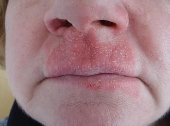 Аллергический контактный дерматит вокруг носа и рта