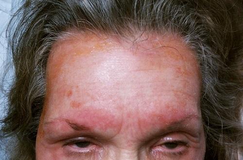 Аллергический контактный дерматит на лице после шампуня