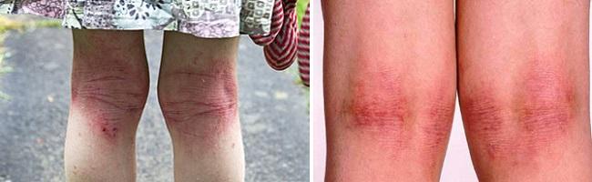 Атопический дерматит на ногах