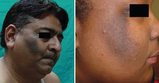 Черный акантоз на щеках