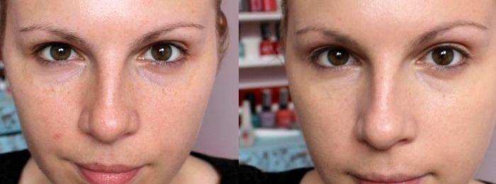 Эффект от BB крема для жирной кожи
