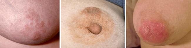 Экзема груди