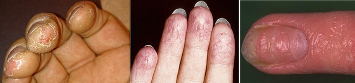 Сохнут подушечки пальцев на руках что делать. Сохнет кожа на руках и пальцах – что делать? Применение народных средств