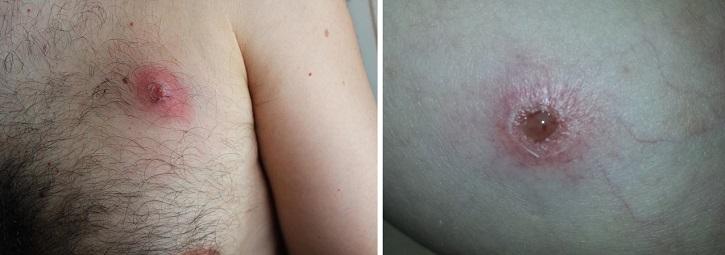 Фурункулы на груди у мужчины и женщины
