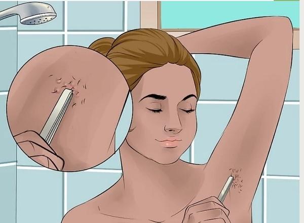 Избавление от вросшего волоса под мышкой