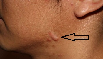 Келоидный рубец на лице