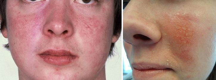 Контактный дерматит вокруг носа