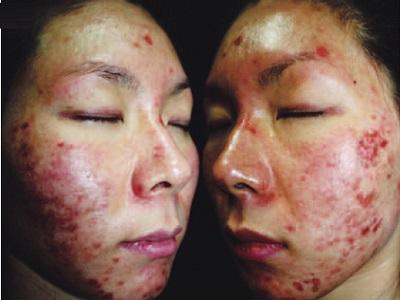 Раздражающий контактный дерматит на лице