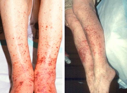 Токсидермия на ногах