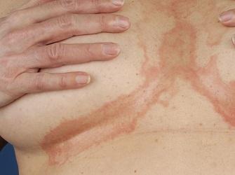 Опрелости на груди