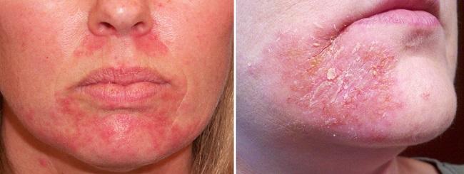 Периоральный дерматит на подбородке
