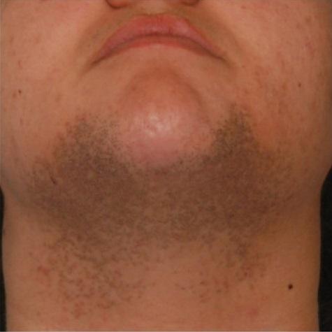 Темная кожа после бритья на лице