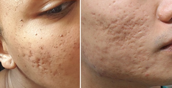 Темные шрамы после акне на лице