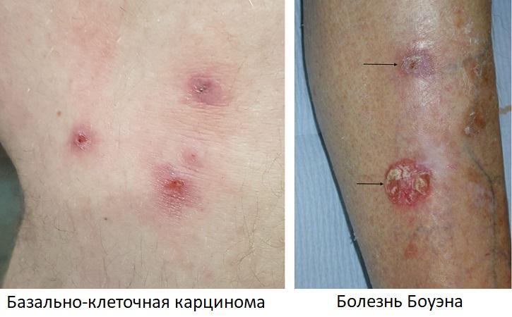 Базально-клеточная карцинома и болезнь Боуэна
