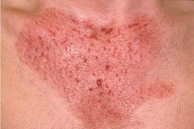 Раздражающий контактный дерматит