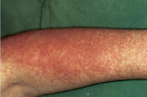 Острый раздражительный контактный дерматит
