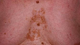 Себорейный дерматит на груди