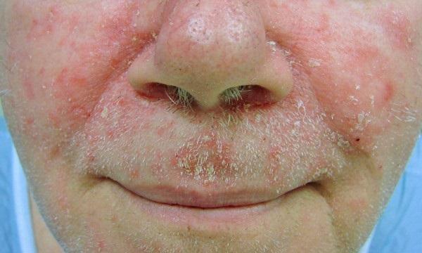 Себорейный дерматит вокруг рта и носа