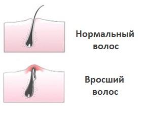 Вросший и нормальный волос