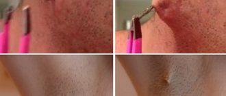 Длинный вросший волос повышает риск развития кисты