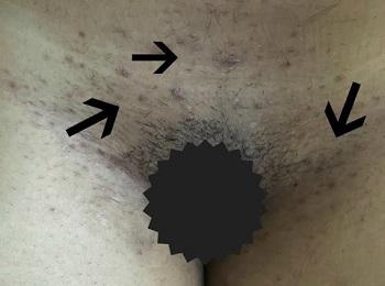 Вросшие волосы в зоне бикини