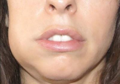 Отек лица при абсцессе зуба