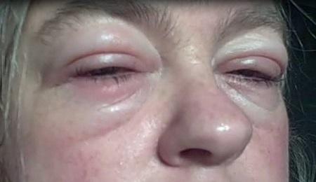 Контактный дерматит из-за косметики